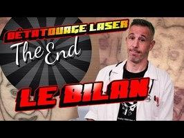 DÉTATOUAGE LASER : C'EST FINI ! LE BILAN DES 3 ANS
