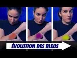 Pourquoi les ecchymoses changent de couleur ?